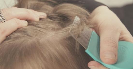 Bahaya kutu rambut
